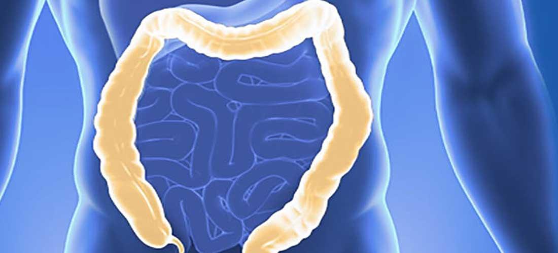 Dickdarmentzündung | Dr. Pfundstein | München | Gastroenterologe | Magenspiegelung | Darmspiegelung