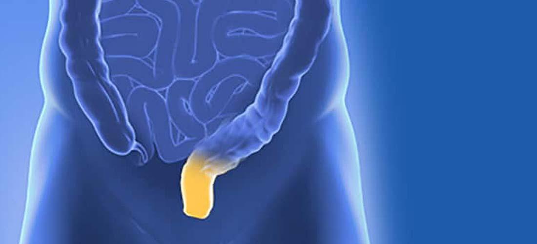 Entzündung am Enddarm | Dr. Pfundstein | München | Gastroenterologe | Magenspiegelung | Darmspiegelung